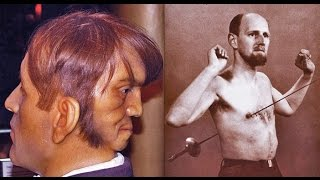 getlinkyoutube.com-Цирк уродов 3: истории и трагедии цирковых уродцев, 10 самых страшных историй ужасных заболеваний