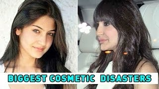 getlinkyoutube.com-Bollywood's Biggest Cosmetic Surgery Disasters