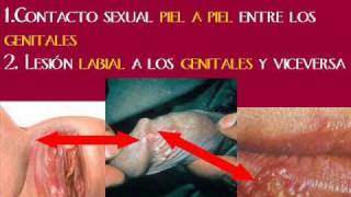 getlinkyoutube.com-Herpes Genital