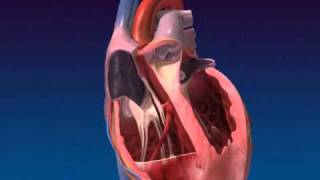getlinkyoutube.com-Congestive heart failure.flv