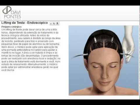 Cirurgia Plástica Lifting da Testa Endoscópico - Dr. Davi Pontes - Fortaleza - Natal - São Luís