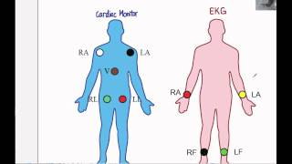 getlinkyoutube.com-EKG 01: How to perform an EKG