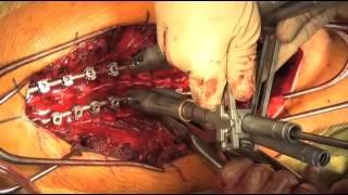getlinkyoutube.com-Cirugía de corrección de deformidad de columna (escoliosis idiopática)