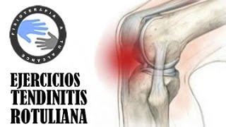 getlinkyoutube.com-Tendinitis rotuliana, ejercicios, tratamiento y rehabilitacion