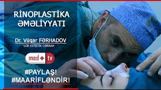 getlinkyoutube.com-Rinoplastika (Burun plastik emeliyyati tam izle) - Dr. Vuqar Ferhadov_www.medplus.tv