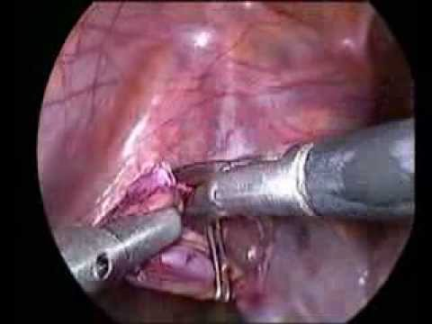 Laparoscopic Varicocelectomy In Adult by Akhter Ganai