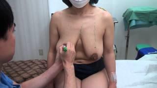 getlinkyoutube.com-高須クリニック 乳房縮小手術 術前のデザイン解説 大きすぎる垂れたバストを小さくする 美容整形動画