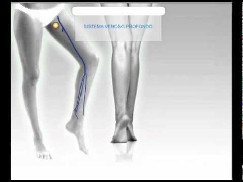 dottorcandido.com: sistema venoso delle gambe