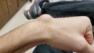 Draining and Removing a Huge Ganglion Cyst with Aspiration