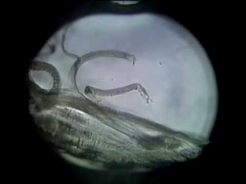 Skeletal Muscle Cell Contraction 1 1 mpeg2video