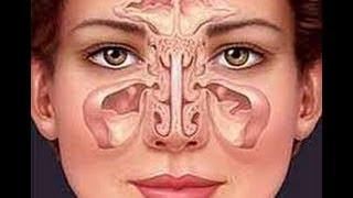 getlinkyoutube.com-Sinusitis como quitar la sinusitis