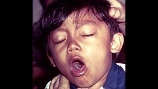 getlinkyoutube.com-دواء السعال و الكحه عند الاطفال بشكل فعال