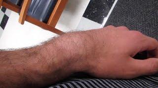 getlinkyoutube.com-I BROKE MY ARM!! (WARNING: GRAPHICAL)
