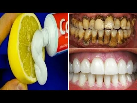 Download Thumbnail For Magical Teeth Whitening Remedy Get Whiten