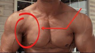 getlinkyoutube.com-Bodybuilding w/ PEC TEAR Part 1