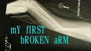 getlinkyoutube.com-MY BROKEN ARM (Radius and Ulna)
