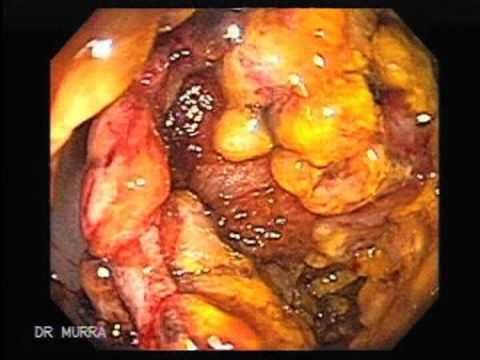 Toxic megacolon due to a pseudomembranous colitis