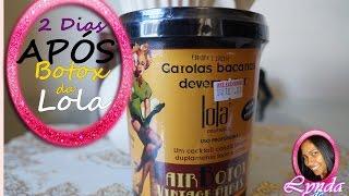 getlinkyoutube.com-2 dias APÓS Botox da Lola :)
