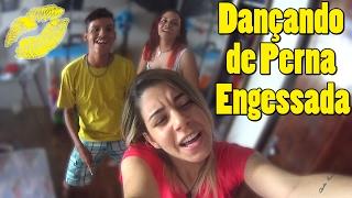 Dançando de Perna Engessada