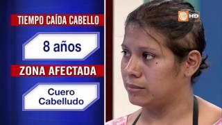 getlinkyoutube.com-Alopecia por Dermatitis Seborreica Crónica