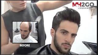getlinkyoutube.com-Hair Replacement FITTING VIDEO (Sam) – Hair loss, Baldness, Hair Wigs, Hair Toupees, Hair pieces