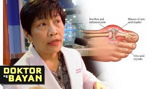 Tips sa Mataas na URIC ACID - ni Dr Elizabeth Montemayor (Kidney Specialist) #2b