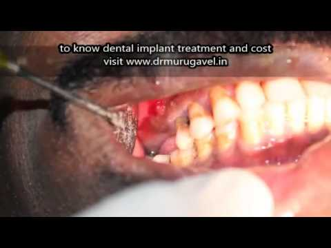Extraction of Periapical abscess teeth and dental implant done in single visit in chennai