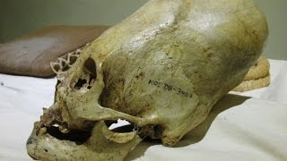 getlinkyoutube.com-The Largest Elongated Skull In The World?