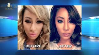Hazel E's Revision Rhinoplasty on The Doctors by Dr. Ghavami