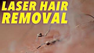 getlinkyoutube.com-Science of Laser Hair Removal in SLOW MOTION