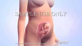 getlinkyoutube.com-Medical Animations: Intrauterine Insemination (IUI)