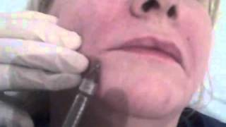 getlinkyoutube.com-Facial Fillers - Lines Beneath the Mouth (Marionette lines) With Filler