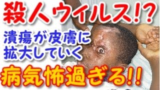 getlinkyoutube.com-【閲覧注意】殺人バクテリアか!?潰瘍が皮膚に拡大していく奇病【ブルーリアルサー】