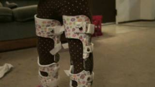 getlinkyoutube.com-Putting On My Daughters New Leg Braces (and walking update!)