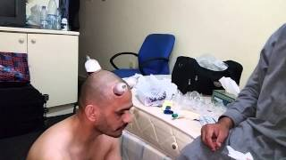 Hijama (cupping therapy ) for headache
