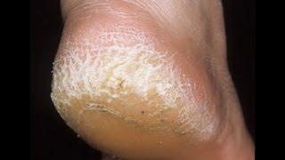 getlinkyoutube.com-الحل السحري لعلاج تشقق القدمين بوصفة مذهلة