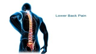 getlinkyoutube.com-5 Steps to Lower Back Pain Relief