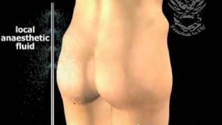 getlinkyoutube.com-buttock lipo تصغير المؤخرة و تصغير الارداف