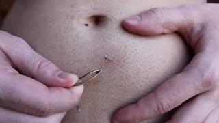 getlinkyoutube.com-Longest ingrown hair removal below belly button