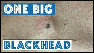 getlinkyoutube.com-One Big Blackhead, aka Dilated Pore of Winer