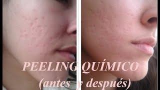Peeling químico (Antes y después)