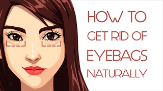 getlinkyoutube.com-What Your Eye Bags Tell You About Your Health