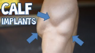 MY CALF IMPLANTS GONE WRONG!