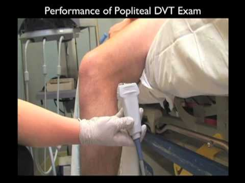 How to Case Study: Deep Vein Thrombosis Detection with Ultrasound Part 1 - SonoSite, Inc.