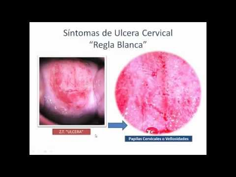 CUELLO DE UTERO - ULCERA - Cervical Cancer