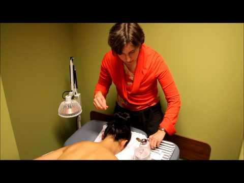 Acupuncture Demonstration and Benefits