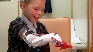 getlinkyoutube.com-Мальчику распечатали руку на 3D-принтере   Критическая точка