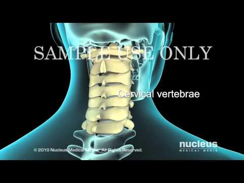 Lumbar Laminectomy -SqWKWR4eR78