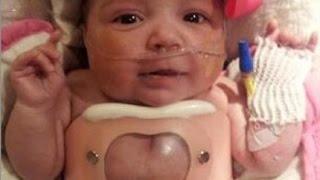 getlinkyoutube.com-【感動】心臓が体外に出たまま生まれた赤ちゃん。危険な手術を乗り越え家族のもとへ