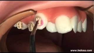 getlinkyoutube.com-ORTOCERVERA / Ortodoncia: Cementado de Brackets Autoligado Camaleón